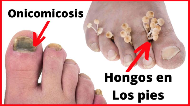 los mejores remedios para tratar los hongos en los pies
